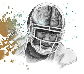 Concussion - Football -